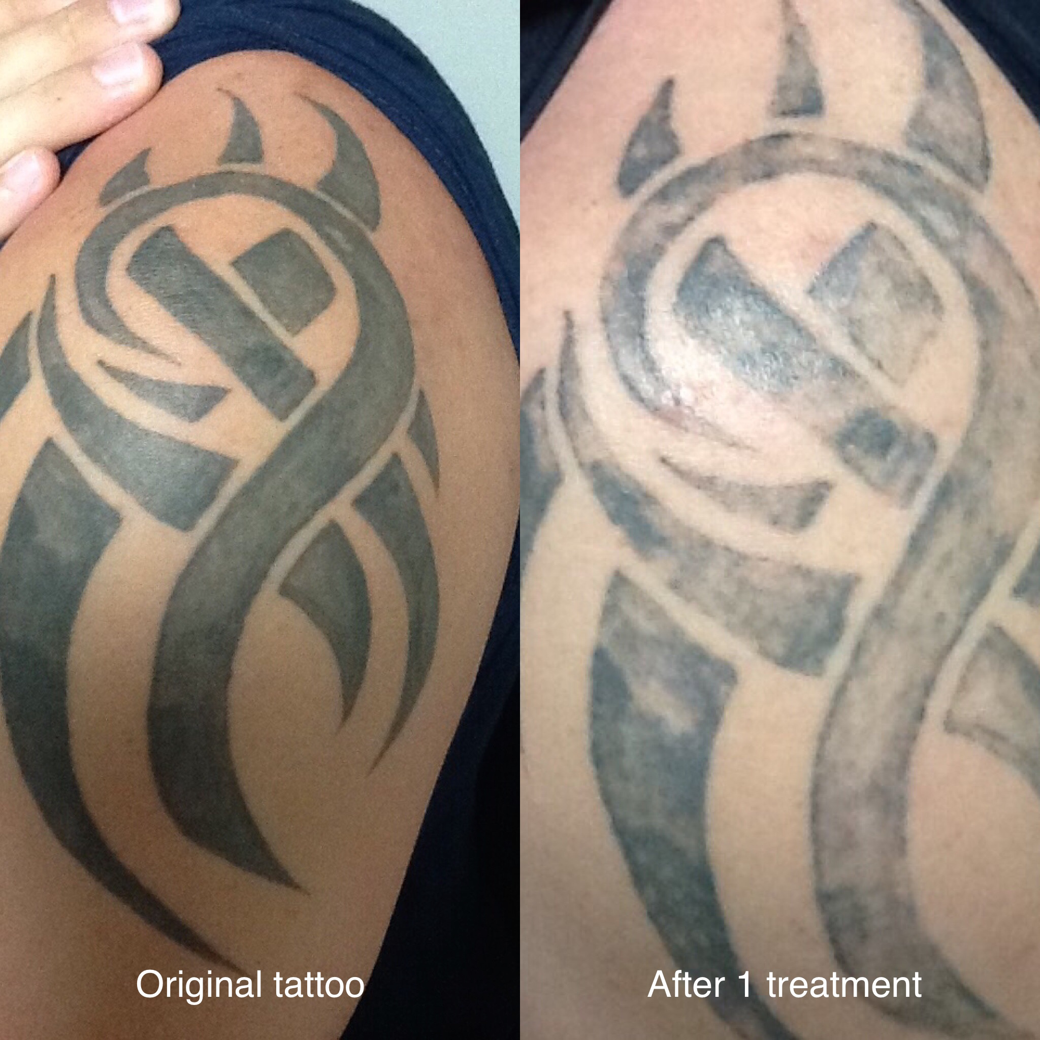 Gallery before after photos unleash your healing power for Tattoo removal healing